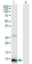 Western blot - Anti-POLR2J2 antibody (ab118114)