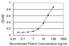 Sandwich ELISA - Anti-POLR2J2 antibody (ab118114)