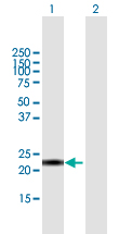 Western blot - Anti-CALML6 antibody (ab118115)