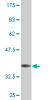 Western blot - Anti-FXC1 antibody (ab118117)