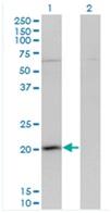 Western blot - Anti-GPSM3 antibody (ab118118)