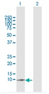Western blot - Anti-G0/G1switch 2 antibody (ab118120)