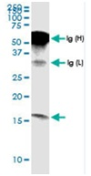 Immunoprecipitation - Anti-G0/G1switch 2 antibody (ab118120)