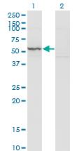 Western blot - Anti-KRT71 antibody (ab118124)