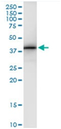 Immunoprecipitation - Anti-JMJD7-PLA2G4B antibody (ab118127)