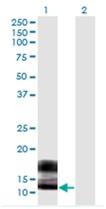 Western blot - Anti-SPRR2F antibody [5A9] (ab118130)