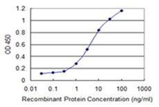 Immunoprecipitation - Anti-SPRR2F antibody (ab118130)