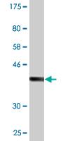 Western blot - Anti-HSFY2 antibody (ab118131)
