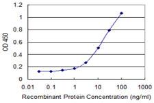 Sandwich ELISA - Anti-SUSD5 antibody (ab118136)