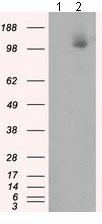 Western blot - Anti-ATP citrate lyase antibody [3G8] (ab118150)