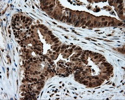 Immunohistochemistry (Formalin/PFA-fixed paraffin-embedded sections) - Anti-ATP citrate lyase antibody [3G8] (ab118150)