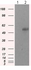 Western blot - Anti-SIL1 antibody [1C4] (ab118155)