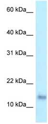 Western blot - Anti-PRAP1 antibody (ab118186)