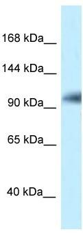 Western blot - Anti-KIAA1267 antibody (ab118187)