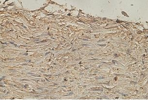 Immunohistochemistry (Formalin/PFA-fixed paraffin-embedded sections) - Anti-katanin p80 antibody (ab118219)
