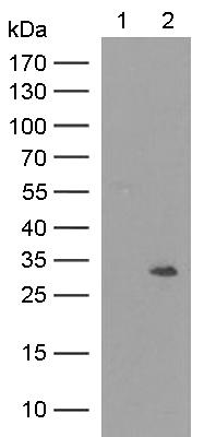 Western blot - Anti-Nmnat1  antibody [1F7] (ab118270)