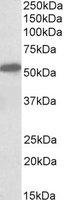 Western blot - Anti-Cannabinoid Receptor I antibody (ab118277)