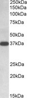 Western blot - Anti-IDH3A antibody (ab118278)