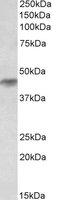 Western blot - Anti-HRH2 antibody (ab118279)