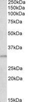 Western blot - Anti-Amino-terminal enhancer of split antibody (ab118280)