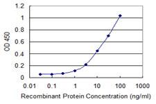 Sandwich ELISA - Anti-PDPK2 antibody [1G3] (ab118293)