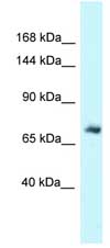 Western blot - Anti-Moesin antibody (ab118294)