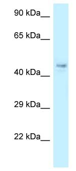 Western blot - Anti-COPS4 antibody (ab118302)