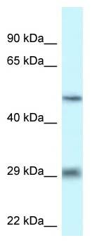 Western blot - Anti-LIPH antibody (ab118303)