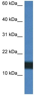 Western blot - Anti-Histone H2A.Z antibody (ab118305)