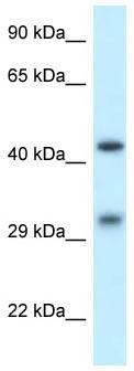 Western blot - Anti-LIMPII antibody (ab118306)