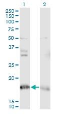 Western blot - Anti-NDUFA8 antibody (ab118319)