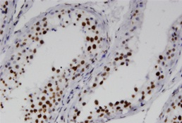 Immunohistochemistry (Formalin/PFA-fixed paraffin-embedded sections) - Anti-RNF25 antibody (ab118320)