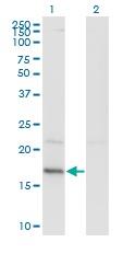 Western blot - Anti-HDDC3 antibody (ab118325)