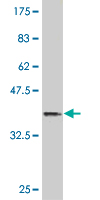 Western blot - Anti-HOXB9 antibody (ab118328)