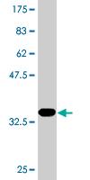 Western blot - Anti-PACSIN2 antibody (ab118330)