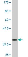 Western blot - Anti-WTAP antibody (ab118331)