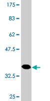 Western blot - Anti-HAPLN4 antibody (ab118333)