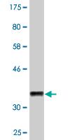 Western blot - Anti-CELA1 antibody (ab118335)