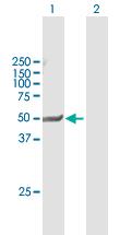 Western blot - Anti-PXR antibody (ab118336)