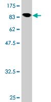 Western blot - Anti-NXF3 antibody (ab118337)