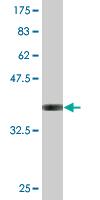 Western blot - Anti-Uba6 antibody (ab118344)