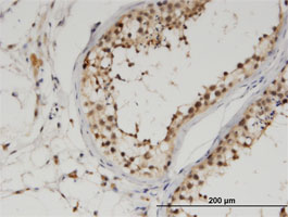 Immunohistochemistry (Formalin/PFA-fixed paraffin-embedded sections) - Anti-Uba6 antibody (ab118344)