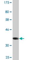 Western blot - Anti-SLC22A6 antibody (ab118346)