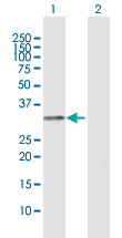 Western blot - Anti-HLA DR antibody (ab118347)