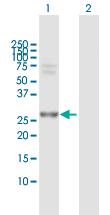 Western blot - Anti-PSMA7 antibody (ab118350)