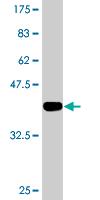 Western blot - Anti-ILKAP antibody (ab118351)