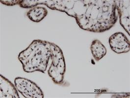 Immunohistochemistry (Formalin/PFA-fixed paraffin-embedded sections) - Anti-ILKAP antibody (ab118351)