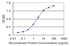 Sandwich ELISA - Anti-ILKAP antibody (ab118351)