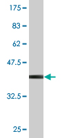 Western blot - Anti-PCSK1N antibody (ab118352)