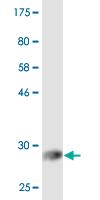 Western blot - Anti-EHD2 antibody (ab118356)